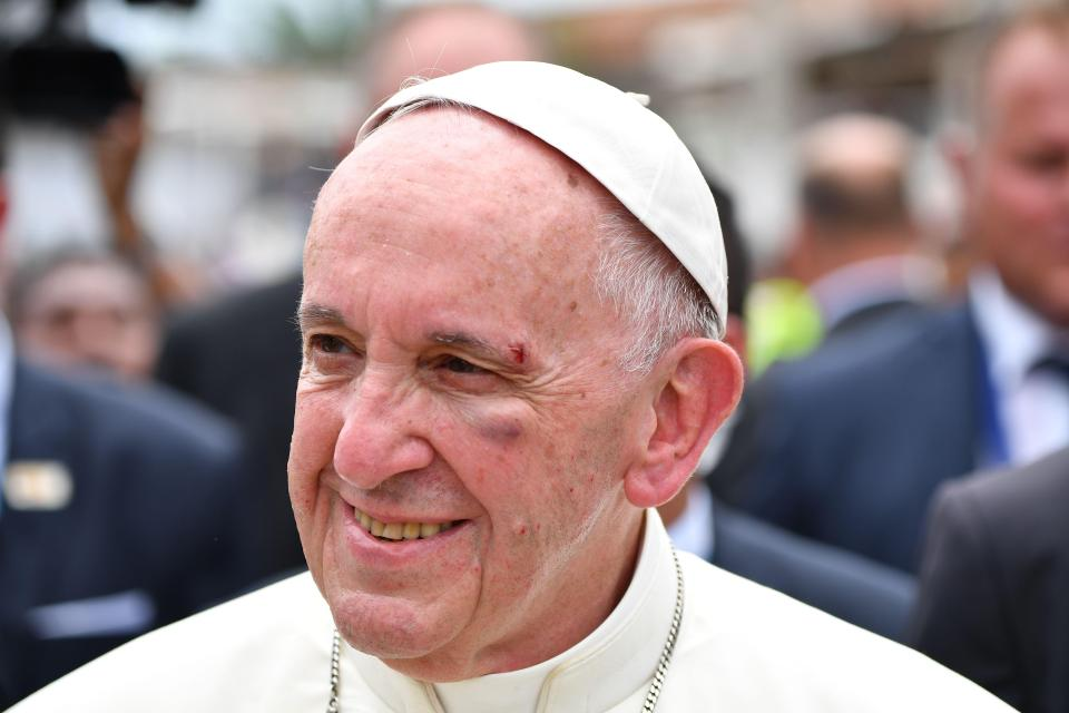 , Pope Francis gets black eye, bruises after mobile accident [Photos], Effiezy - Top Nigerian News & Entertainment Website