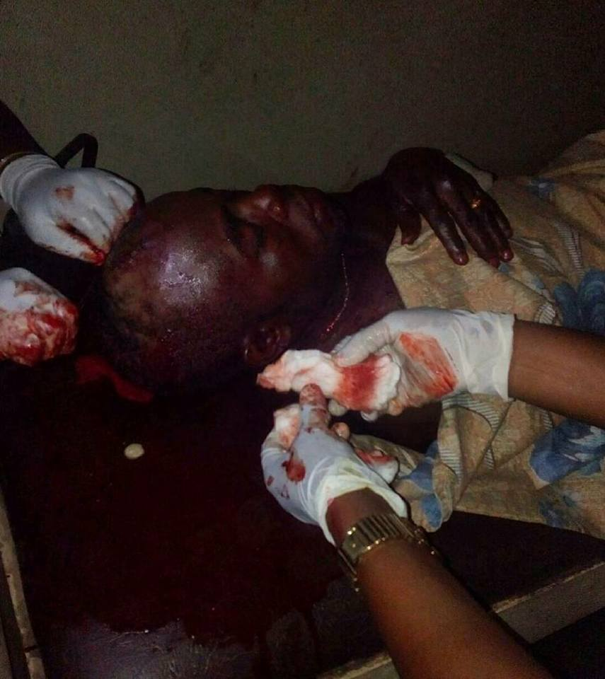 , Okada riders and Police clash in Ibadan, one dead, many injured. (Graphic Photos), Effiezy - Top Nigerian News & Entertainment Website