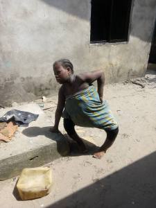 Physically challenged woman kills her own baby with hot water