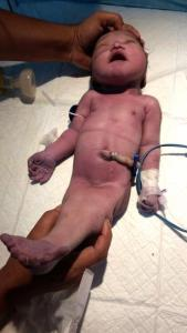 ", 23-Year-Old Lady Gives Birth To A ""Mermaid Baby"" (Photos), Effiezy - Top Nigerian News & Entertainment Website"