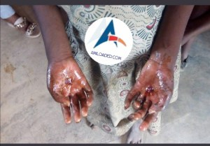 , Grandma Sets Fire On Her 9-Year-Old Grandchild's Hands For Eating Siblings Food In Osun State (Photos), Effiezy - Top Nigerian News & Entertainment Website