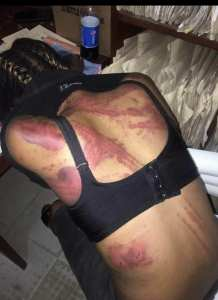 Woman hospitalised after been beaten by brother-in-law and wife (Photos)