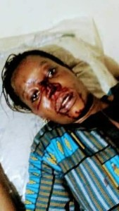 Young Lady Almost Beaten To Death By Her Boyfriend Who Is In The Army (Photos)