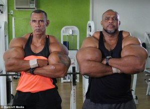 See 2 Brothers Who Injected Themselves With Dangerous Chemicals Just To Get Big Biceps (Photos)