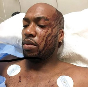 """""""He fought for his life 3 times and survived' – Nigerian mother shares her son's survival story"""