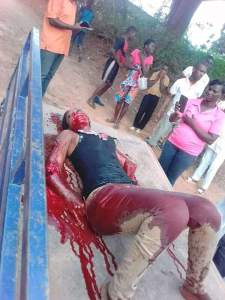SHOCKING: Man Cuts Off His Girlfriend's Two Hands For Flirting With Another Man (Graphic Photos)