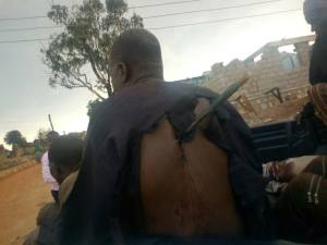 Man Escapes With Arrow In His Back After Attack By Fulani Men. (Graphic Photos)