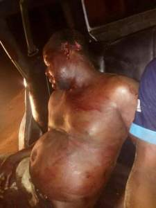 Armed Robbers Shoot An Engineer Dead In Cross Rivers (Graphic Photos)