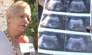 70Yrs Old Woman Claims She Is Pregnant With Her 8th Child As She Shows Off Scan Result (Photo)