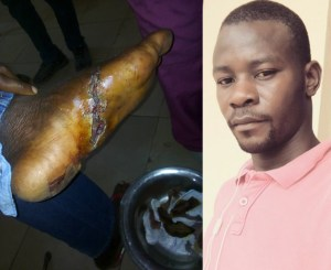 SARS officers shoot Ogun state civil servant on the leg ; cries out for justice (Graphic photos)