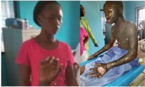 Lady Sets Her Only Son Ablaze For Stealing MP3 Player In Abia (Graphic Photo)