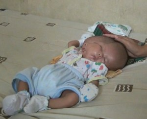 RARE: See This Baby Born With 2 Faces And 2 Brains In Indonesia (Photos)