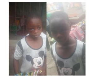 Uncle Injures 11-Year-Old Niece For Exposing Family Problem (Photo)