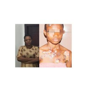 Health Worker Uses Hot Knife To Inflict Wounds On Her 14-yr-old Housemaid. Photo