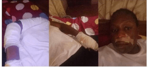 Lady Jumps Out Of A Moving Car In Abuja, Gets Injured (Photos)