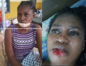 , Jealous girlfriend bites off the lower lip of a lady she suspected with her boyfriend in Ghana (Photo), Effiezy - Top Nigerian News & Entertainment Website