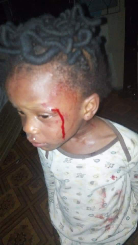 , SAD!! 2-year-old girl beaten mercilessly by her mother for not being able to count 1 to 200 (Photo), Effiezy - Top Nigerian News & Entertainment Website