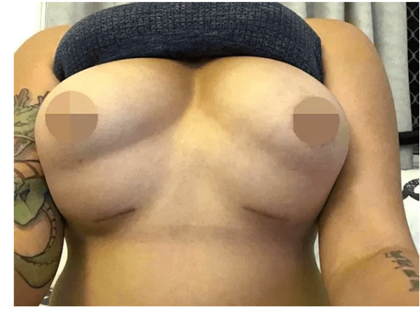 , Young lady deformed with four breasts after undergoing boob surgery (Photos), Effiezy - Top Nigerian News & Entertainment Website