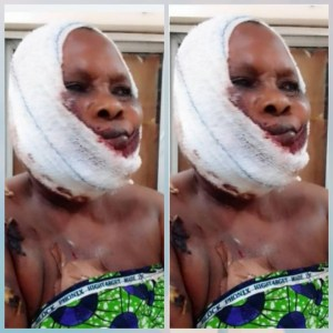 Fulani herdsmen shatter woman's jaw with bullet, remove her finger in Ogun (video) viewers discretion