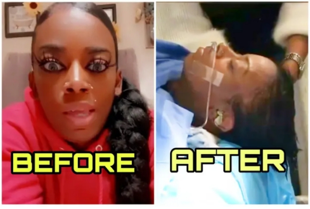 Gorilla glue saga: Lady finally gets her hair back as glue is removed from her scalp (video + photos)
