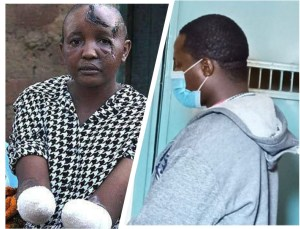 Kenyan man sentenced to jail for chopping off wife's hands