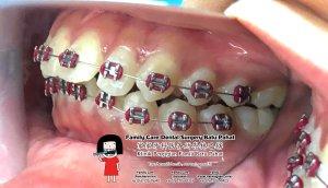 Klinik Pergigian Famili Batu Pahat Johor Malaysia Batu Pahat Doktor Pergigian Kanak-kanak Klinik Pergigian Perkhidmatan Komuniti Ke Sekolah Tinggi Cina Batu Pahat Memeriksa Gigi Pelajar A05-01