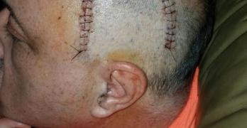 Mauricio Headshot with stitches