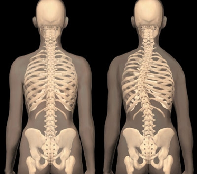 idiopathiás csípőízület