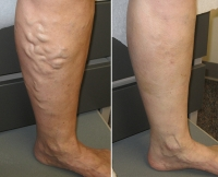 Why You Should Come For A Free Vein Screening!