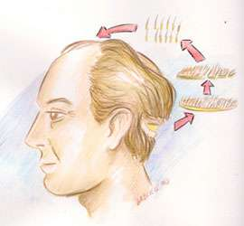 Imagem implante capilar - Clínica Gabriele