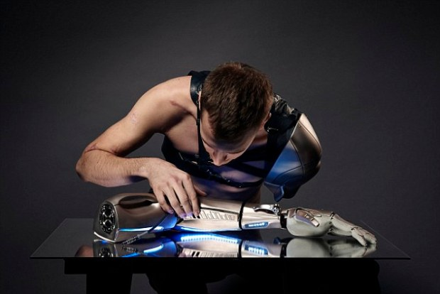 brațul bionic (2)