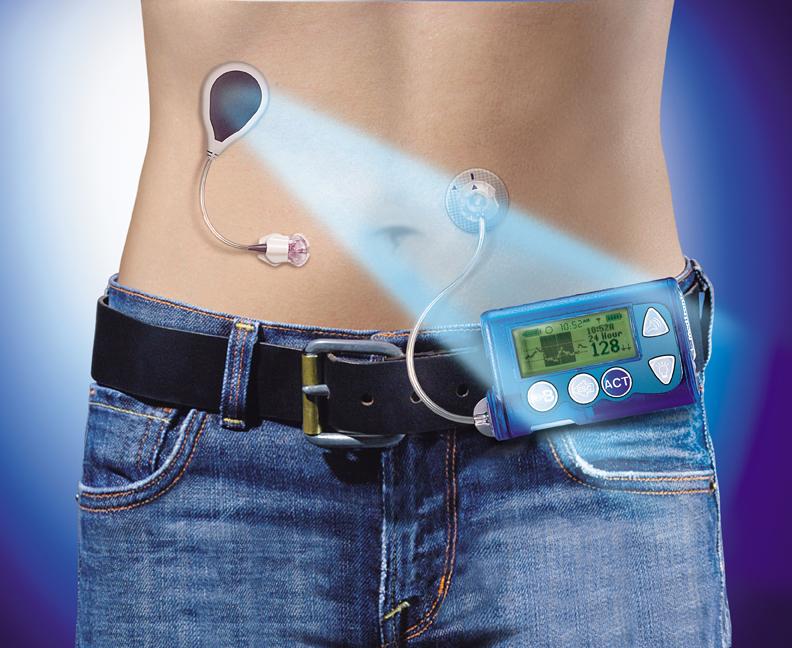 Pompa de insulină cu senzor de glicemie: inovație în tratamentul diabetului