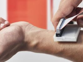 aparat pentru diagnosticarea cancerului de piele