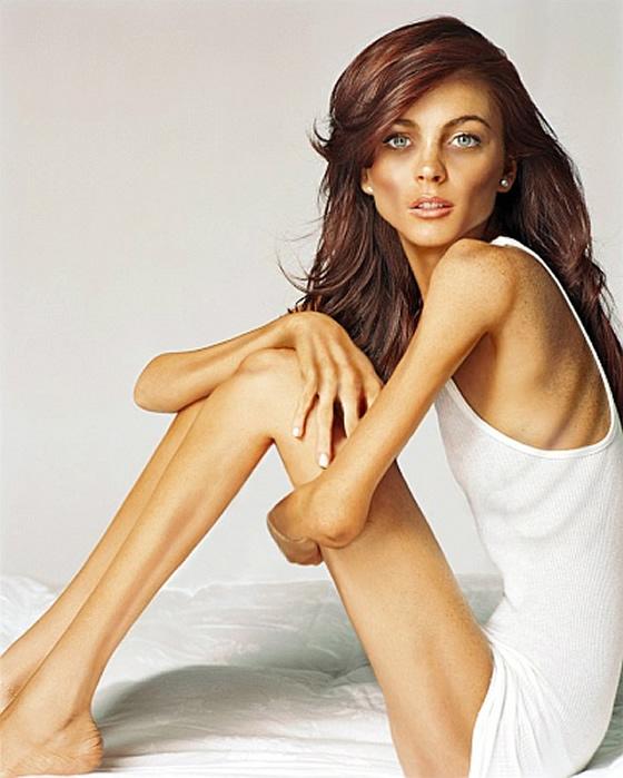 anorexia1206lindsay-lohan
