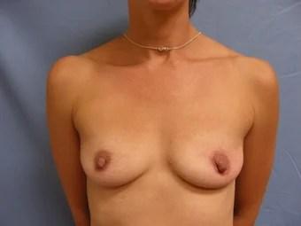 saggy pancake tits