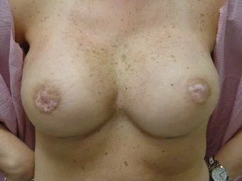 mastectomy tits
