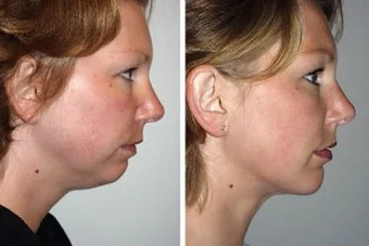 Liposuction of chin with a chin implant photo from William ...