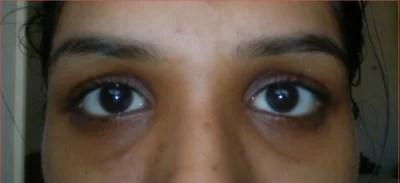 How to Repairs my Hallow/sunken Eyes? (photo) Doctor ...