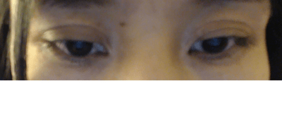 Double Eyelid Surgery Gone Wrong - (BHMG)Beverly Hills ...