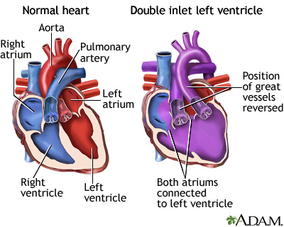 Image comparing a normal heart to a DILV heart.