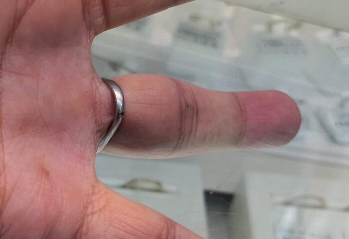 結婚指輪が変形して指の根本を締め付けている