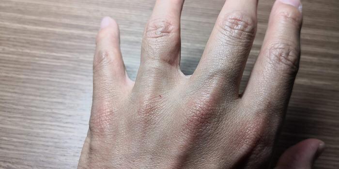 結婚指輪が食い込んだ跡がずっと消えない