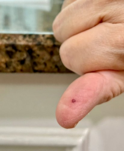 Woman's hand with closeup of small blood blister on thumb