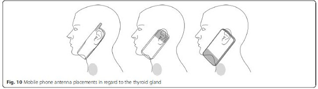 thyroid mobile phone placement-Carlberg&al2016