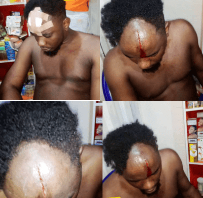 Moment Nigerian Police Attack a Man in His Home and Broke his Head after he ''Demanded to See A Warrant'' in Delta State (photos/video)
