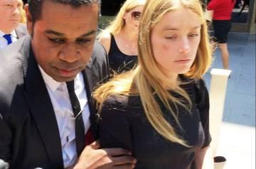 Amber Heard abandona el pasado viernes los juzgados de Los Ángeles. En su pómulo derecho, todavía se aprecia el golpe que según la actriz le causo Johnny Depp al lanzarle un móvil.