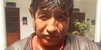 Bancada de UD condena agresión a Rafael Quispe