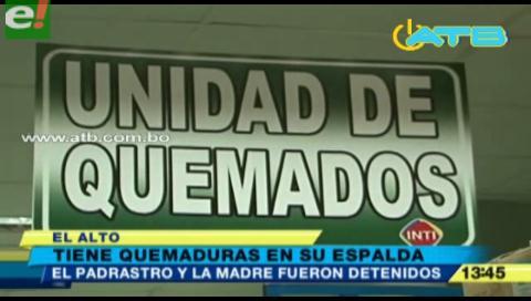 Niño fue quemado por su padrastro en El Alto