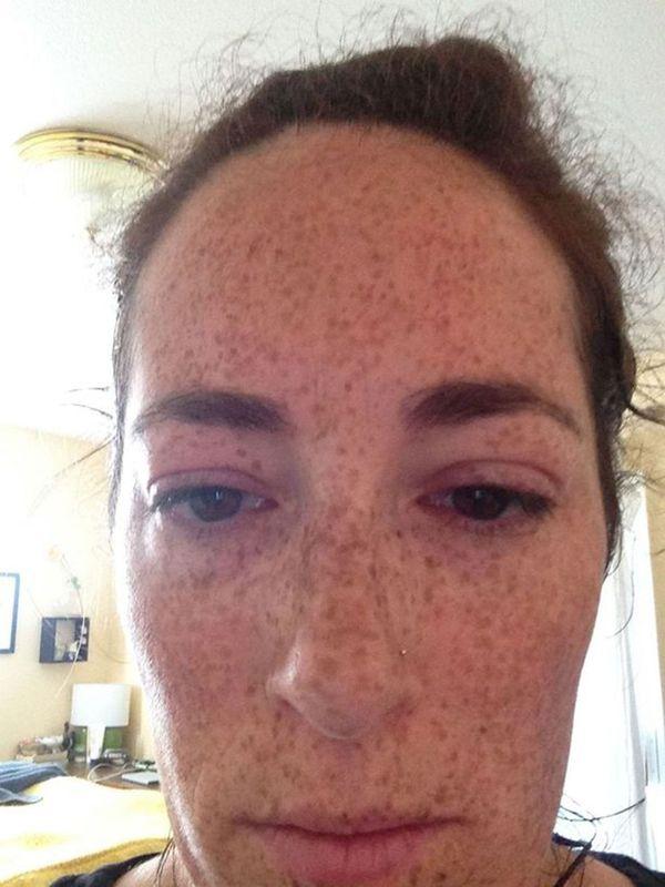 Katy VanNostrand durante una reacción alérgica