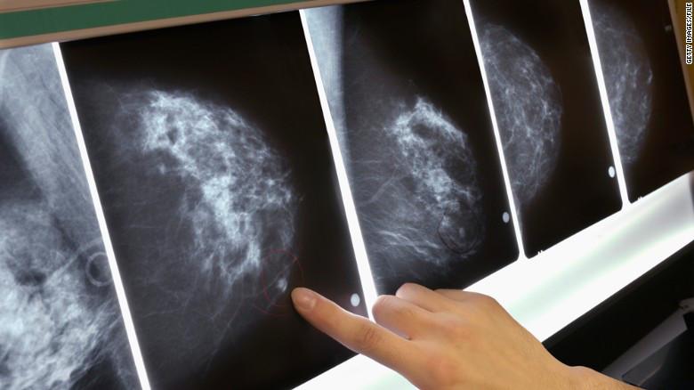111018092923-mammogram-breast-cancer-x-ray-exlarge-169